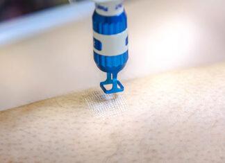 laser frakcyjny dla mężczyzn